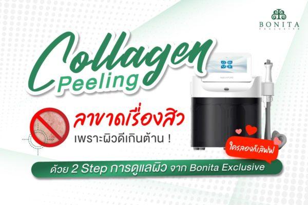 Collagen Peeling ลาขาดเรื่องสิว เพราะผิวดีเกินต้าน