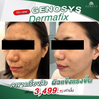 review genosys dermafix